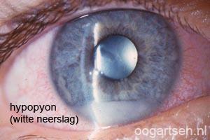 ontstekingscellen in het voorste deel oog