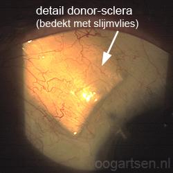 glaucoom implant