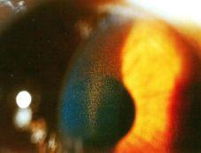 pigmentkorrels tegen binnenzijde hoornvlies