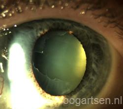 pseudoexfoliatie ooglens