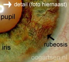 nieuwe bloedvaatjes op iris, rubeosis