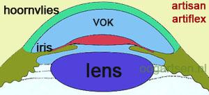 contactlens tussen iris en ooglens