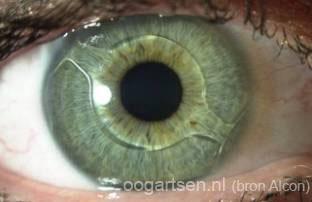 voorste oogkamerlens (Cachet)
