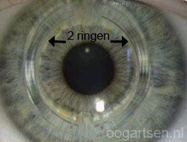 2 cornea ringen (intacs)