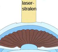 PRK ooglaseren: laserstralen