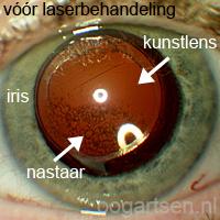 nastaar (troebeling lenszakje na staaroperatie)