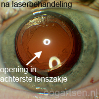 nastaar (na de YAG-laserbehandeling)