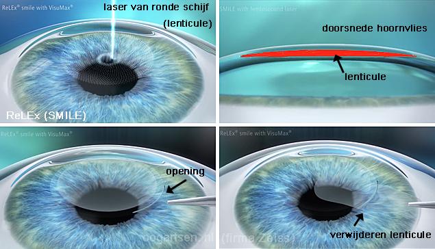 SMILE refractiechirurgie ReLEx