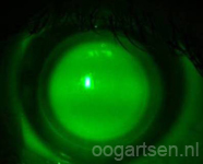 hybride lens
