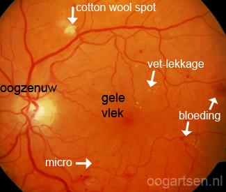 diabetische retinopathie, suikerziekte