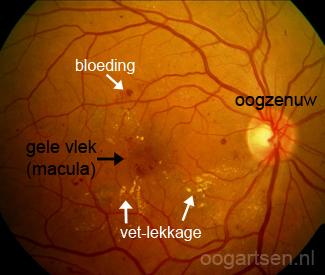 diabetische retinopathie