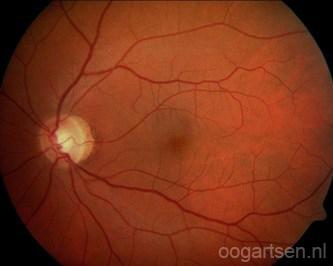een normaal netvlies (retina)