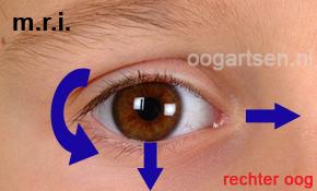 functie onderste rechte oogspier