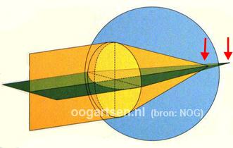 astigmatisme, cylinder
