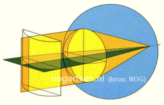 astigmatisme, cylinder correctie