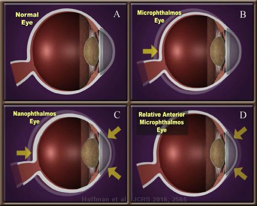 microphthalmos, nanophthalmos, kort oog