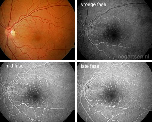 FAG (fluorescentie angiografie)
