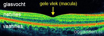 OCT-scan (gele vlek, macula)