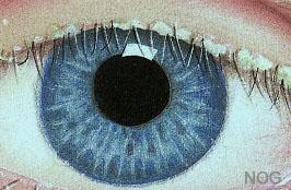 korstjes tussen oogharen
