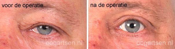 ooglidcorrectie (huidteveel + laagstand)