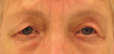 huidteveel bovenoogleden