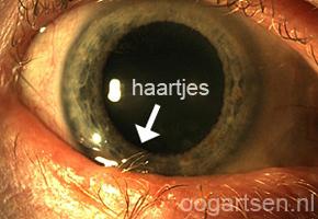 trichiasis (haartjes tegen hoornvlies)