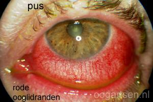 conjunctivitis (slijmvlies / ooglidrand ontsteking)