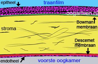 doorsnede hoornvlies (cornea)