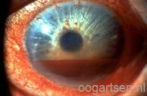 bloed in voorste deel van het oog