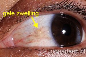 pinguecula (zwelling slijmvlies oog)