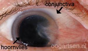 pterygium (wildgroei slijmvlies oog)