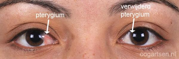 pterygium op slijmvlies oog