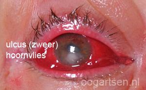 ulcus / zweer / keratitis hoornvlies