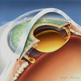 kunstlens in lenszakje na een staaroperatie