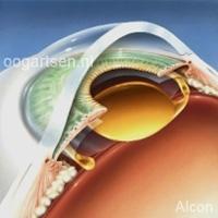 verwijderen van ooglens