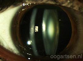 staar, cataract, troebele ooglens