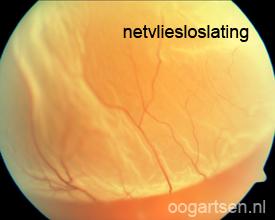 netvliesloslating, ablatio retinae