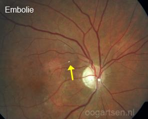 bloedvat afsluiting (embolie) in het oog