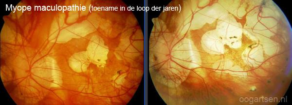 myope maculopathie bij hoge bijziendheid