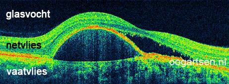 OCT beeld van de gele vlek met vocht (maculadegeneratie)
