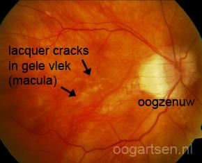 lacquer cracks bij hoge bijziendheid