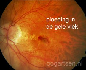 bloeding gele vlek bij myopie, bijziendheid