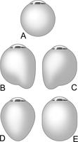 staphyloom