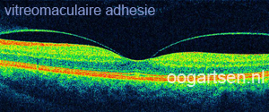 vitreomaculaire adhesie (macula)