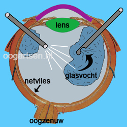vitrectomie (glasvocht operaties)