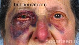 bloeduitstorting (brilhematoom)