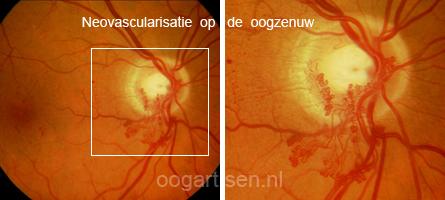 neovascularisaties op de oogzenuwkop