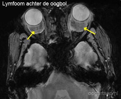 lymfoom orbita (gezwel achter oogbol)