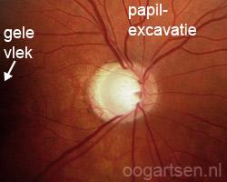 glaucomateuze oogzenuw / papil
