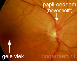 papil-oedeem (gezwollen oogzenuw)